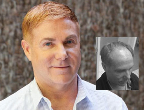 Jernigan's and Hair Transplantation