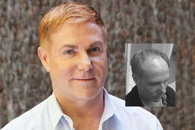 mens hair loss restoration raleigh