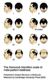 norwood baldness scale