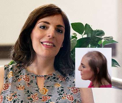female hair loss alopecia wigs hairpieces raleigh nc