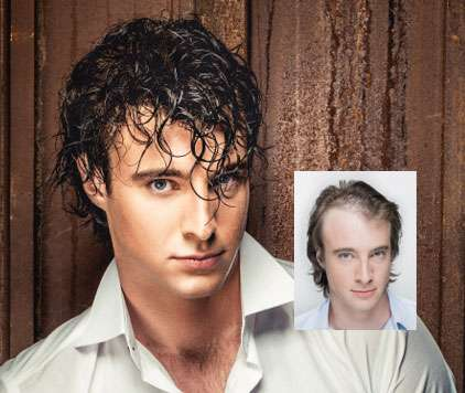 mens hair loss replacement raleigh nc