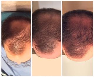 PRP Hair Loss Treatment Raleigh NC