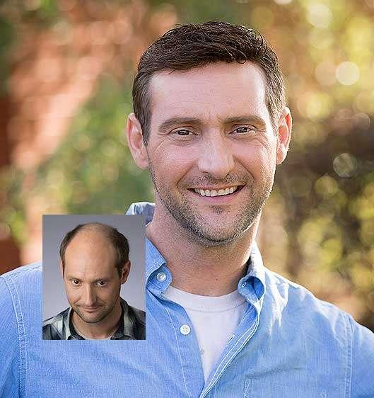 Jernigan's Custom Men's Hair Replacement - Raleigh, NC