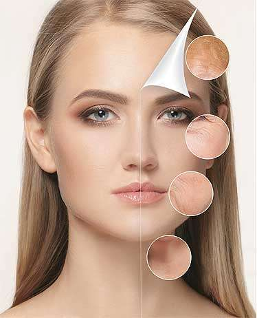 skin rejuvenation PRP Facial