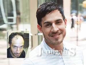 Raleigh Men's Hair Loss Restoration
