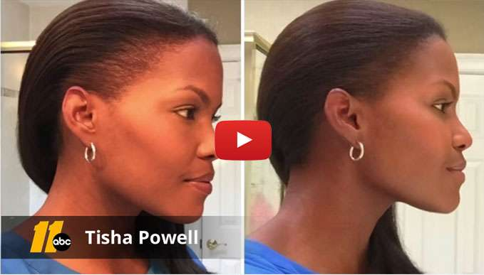 Tisha Powell PRP Hair Therapy Raleigh NC
