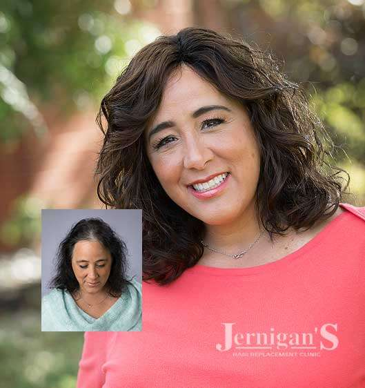 Women's non-surgical hair systems hairpieces Raleigh NC