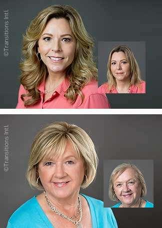 Raleigh Female Thinning Hair Questions