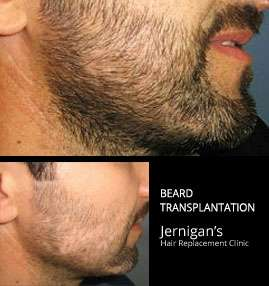 koher beard transplants raleigh north carolina