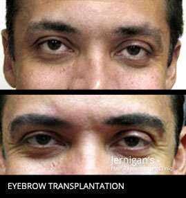 Koher eyebrow transplants raleigh nc