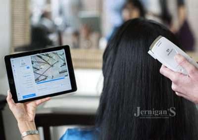 ProGen's Active Care Hair Loss Treatment