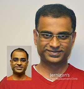 hair restoration transplants raleigh nc