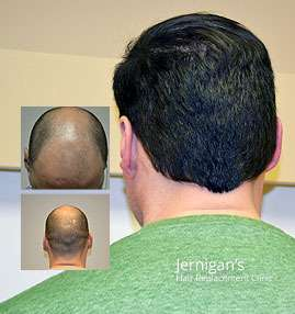 Surgical Hair Loss Transplantation Raleigh North Carolina