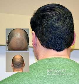 Surgical Hair Loss Transplantation Raleigh North Carolina