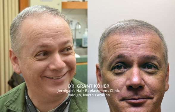 Mens Hair Transplants Jernigans Raleigh