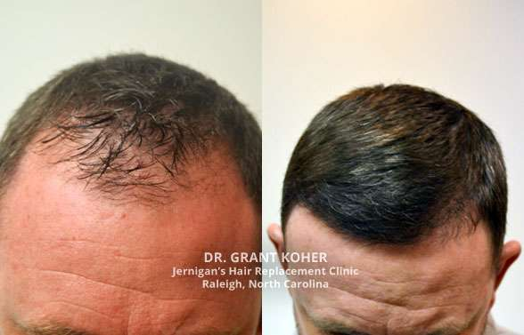 koher hair transplant results