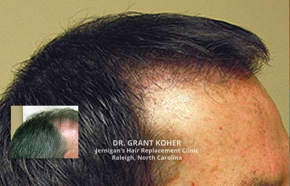 corrective hair transplants raleigh nc