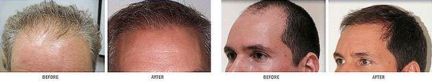 Neograft Advanced FUE Hair Transplants Raleigh NC
