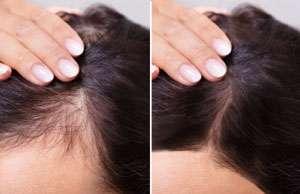 PRP Hair Loss Treatment Women Raleigh NC