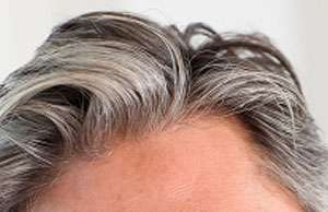 PRP Hair Loss Treatment Therapy Raleigh