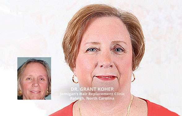 female hair loss transplants restoration