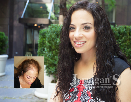 womens non-surgical hair replacement systems raleigh