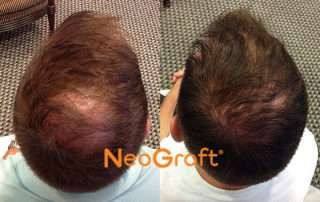 FUE Hair Transplants Raleigh NC