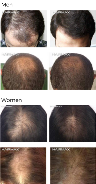 home laser hair regrowth rejuvenation treatment raleigh nc